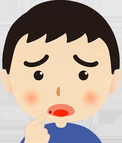 口内炎が気になる男性のイラストの高画質画像